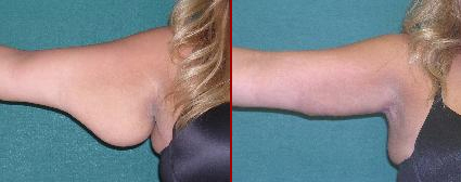 Before/After Arm Lift Surgery